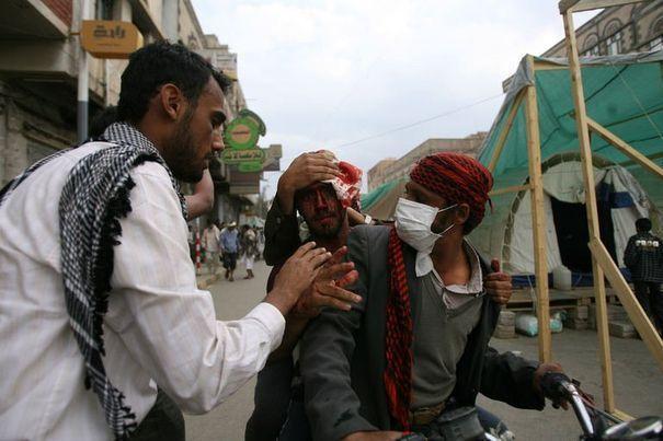 manifestant-yemenite-blesse